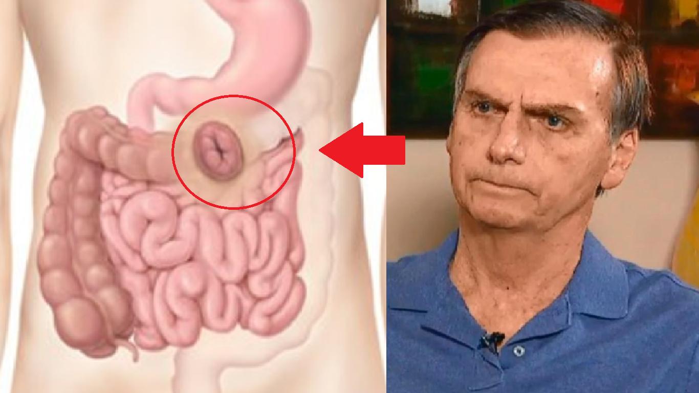Campanha de segundo turno de Bolsonaro é ameaçada após avaliação médica - Foto/Divulgação