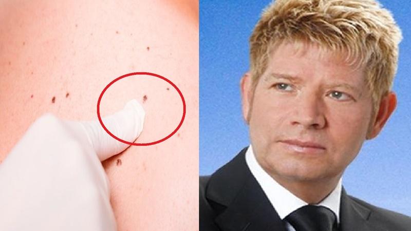 Câncer de pele: Roberto Leal morreu da doença, que tem sintomas e tratamento